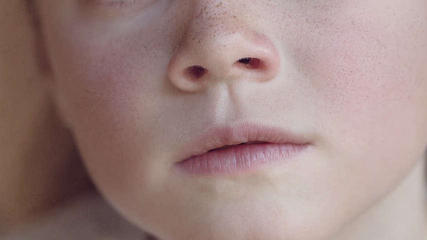 Czerwone policzki u dziecka: Czy to RUMIEŃ ZAKAŹNY?