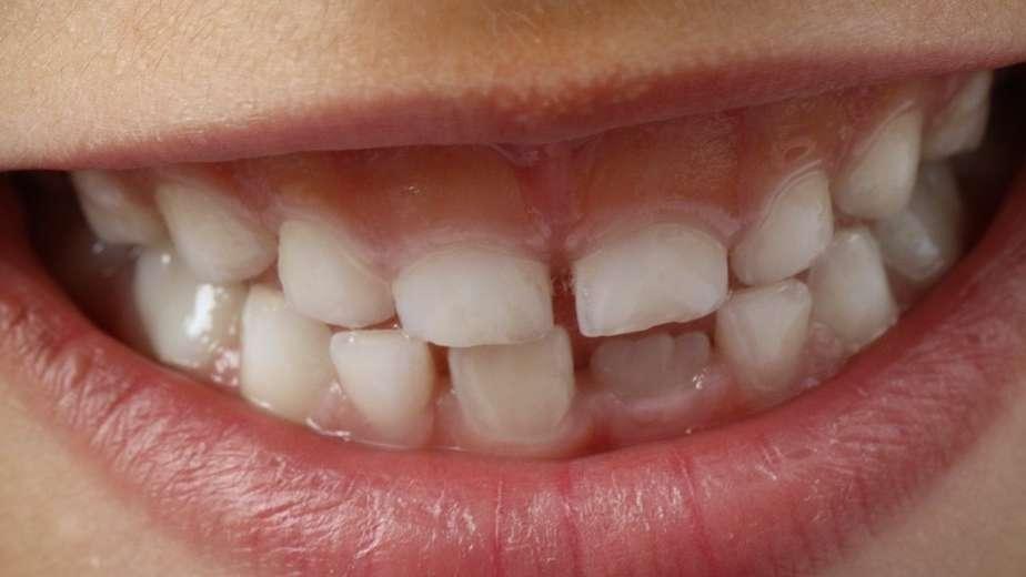 Zgrzytanie zębami u dzieci