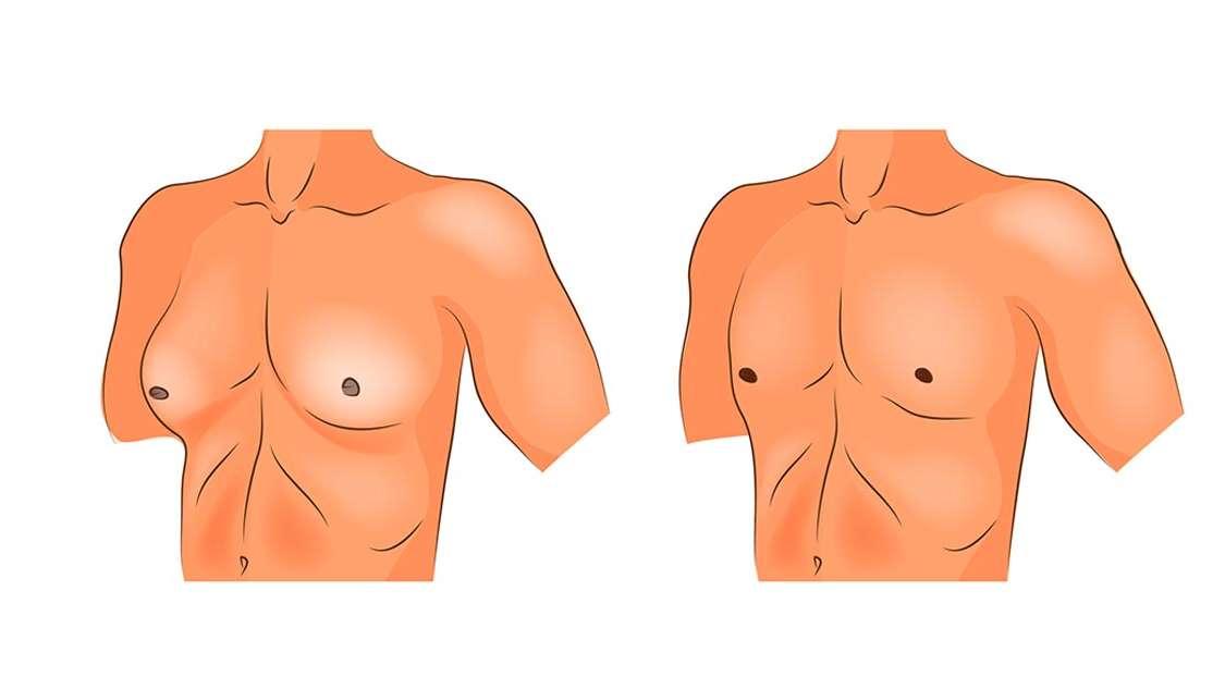 Ginekomastia: przyczyny, objawy i leczenie