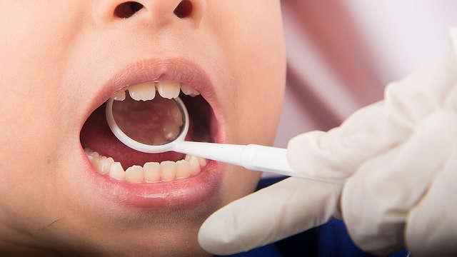 Lakowanie zębów, lakierowanie czy lapisowanie?