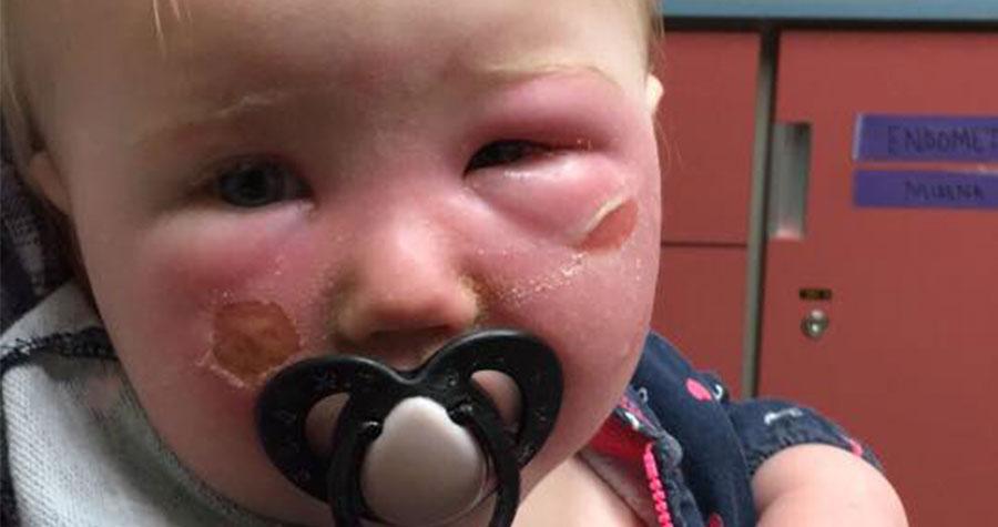 Mama ostrzega przed kremami przeciwsłonecznymi po tym jak jej 14-miesięczna córeczka została poparzona