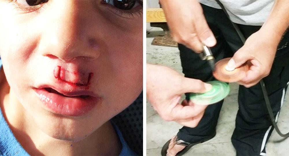 Fidget Spinner rozerwał się i zranił twarz chłopca…