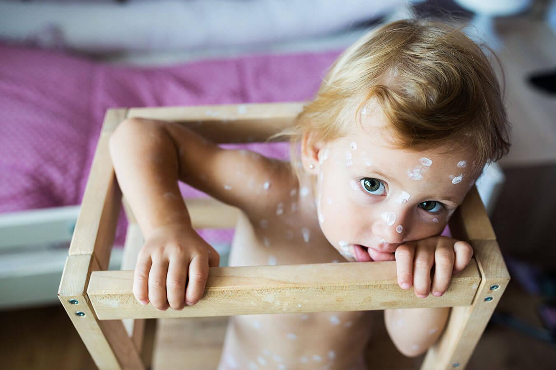 Wysypka na czole u dziecka: skąd się bierze i jak z nią walczyć?