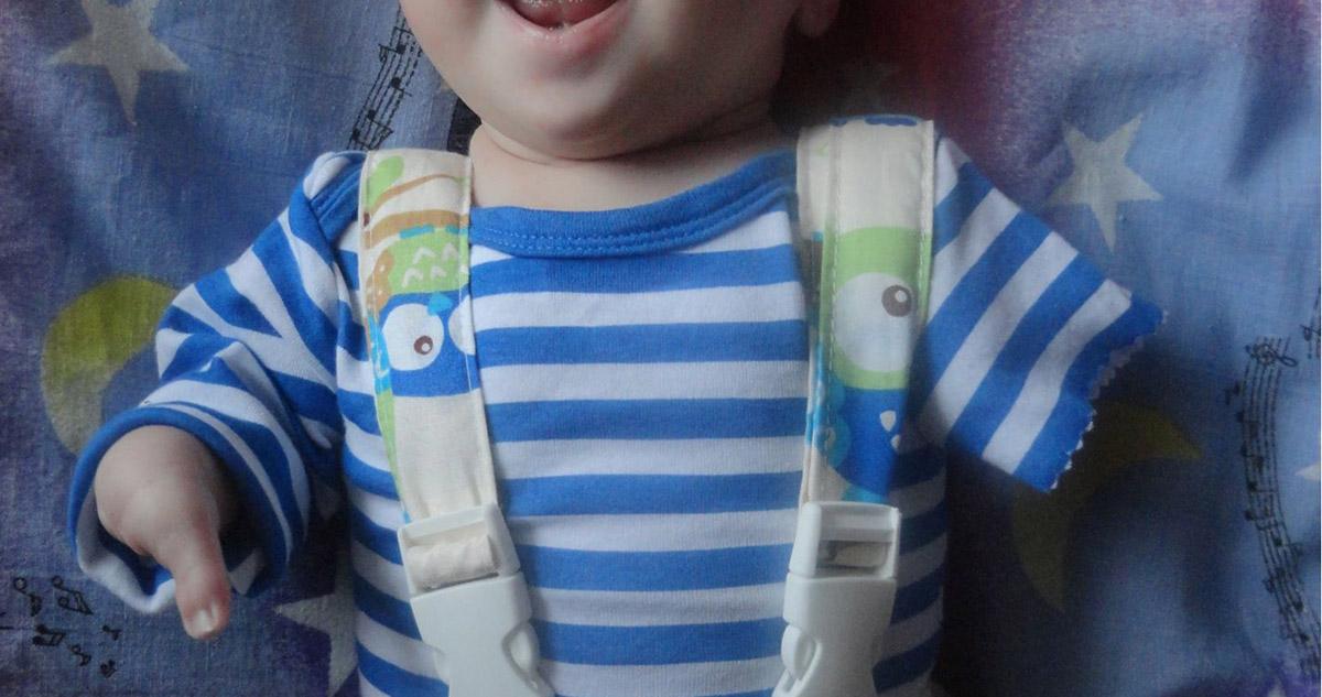 Chłopiec urodził się bez rąk i nóg. Lekarze podczas USG w czasie ciąży nic nie zauważyli