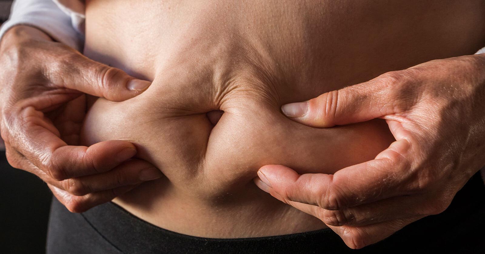 Brzuch tarczycowy: Jak wygląda i jak się go pozbyć?