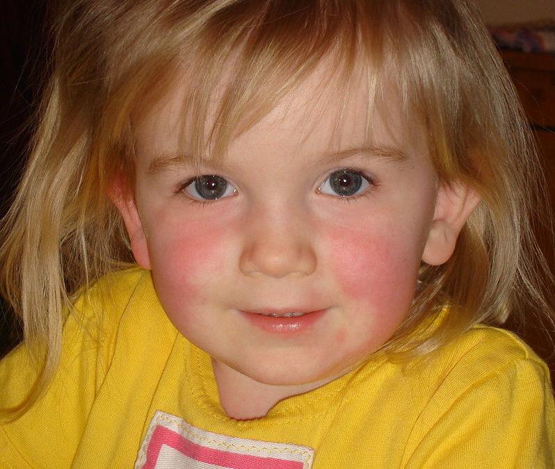 Płonica u dzieci i u dorosłych [sposoby zakażenia, objawy, leczenie i powikłania]
