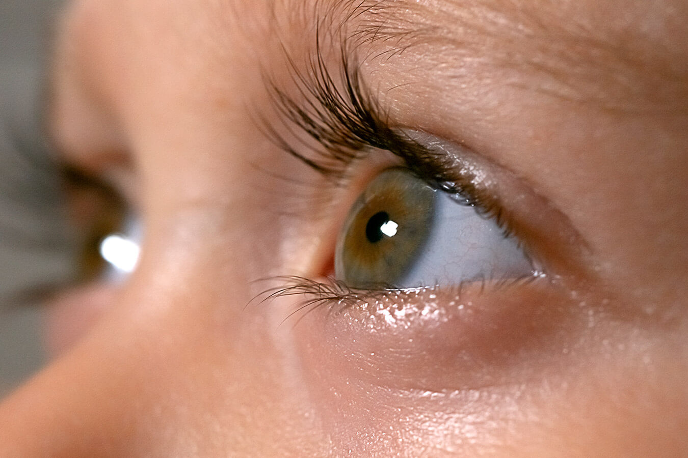 Mruganie oczami u dziecka [przyczyny, leczenie]